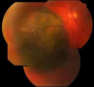 25-Malignant Melanoma of the Choroid